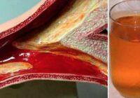Nosprostotas artērijas man maksāja gandrīz dzīvību, bet šis dzēriens  palīdzēja man tās attīrīt