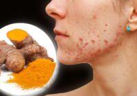 Kurkuma pret pumpām: dabiskas ārstnieciskas receptes tavas ādas skaistumam