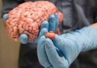 Smadzeņu vēzis: Pirmie signāli, ka jāvēršas pie ārsta
