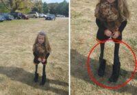 Aplūko rūpīgi: Kā sociālos tīklus nobiedēja meitenīte ar ļoti tievām kājām