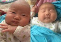Kad mazulīte nāca pasaulē, daudzi viņu uzskatīja par neglītu. Tagad meitenītei ir seši gadi un viņa ir ļoti izmainījusies