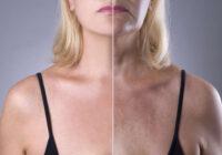 Menopauzes ietekme uz izskatu: Kā tai pretoties?