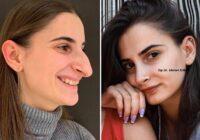 7 parastas sievietes, kuras veikušas rinoplastiku jeb deguna plastisko operāciju