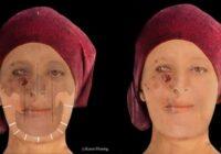 Pārsteidzoša digitālā rekonstrukcija parāda, kā izskatījās 16. gadsimta Skotijas sieviete, kura slimoja ar spitālību