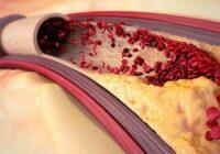 7 glāžu recepte: tīra asinsvadus un asinis