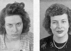 """""""Lobotomijas zelta laiki"""": pacientu fotogrāfijas pirms un pēc"""